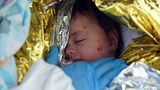 The space blanket that saves lives