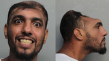 'Half-headed' man arrested for arson, attempted murder