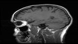 Do brain-training exercises really work?