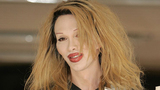 Pete Burns, Dead or Alive singer, dies at 57