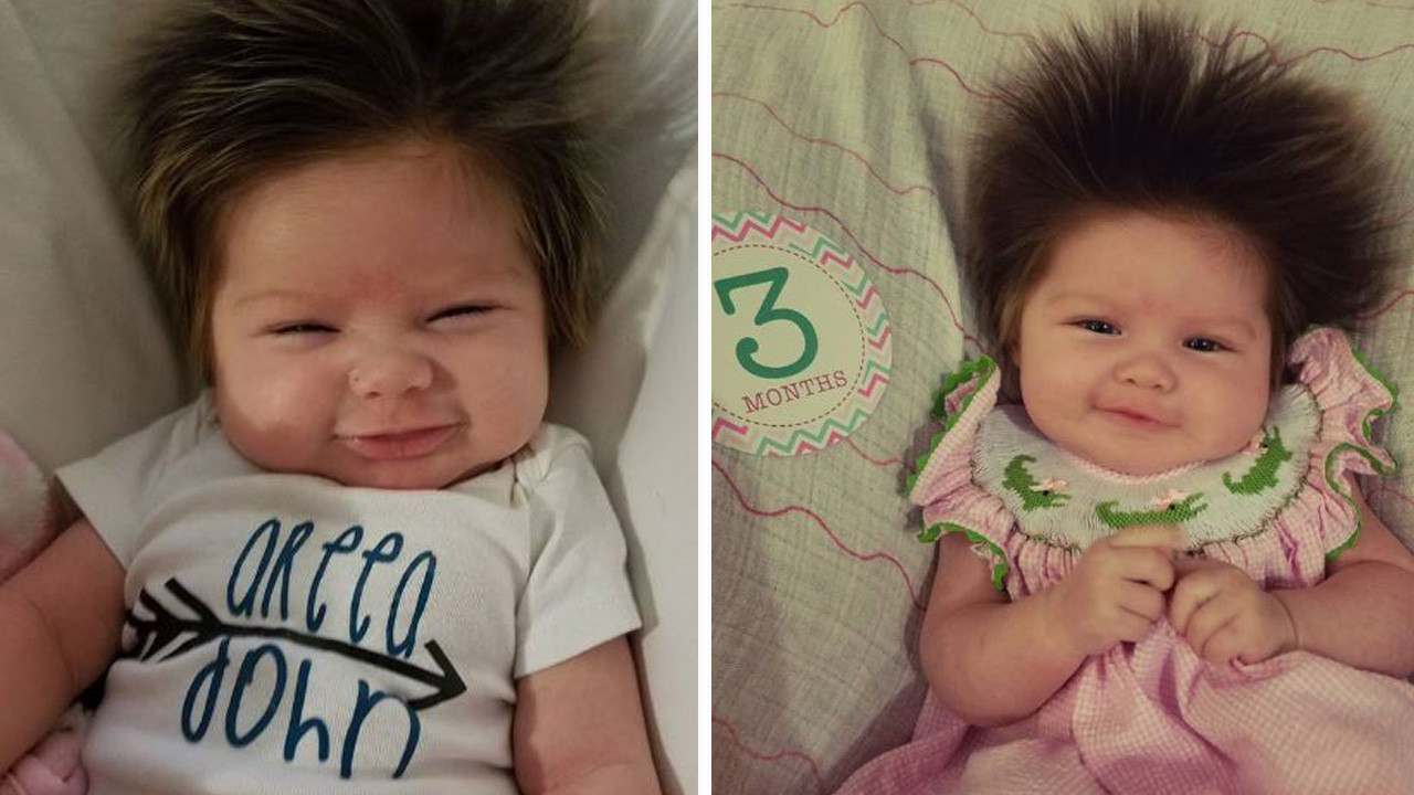 3-Month-Old Baby with Humongous Head of Hair Causes a Stir...